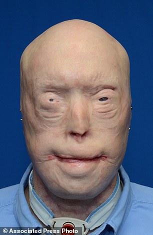 重获新生!美国毁容消防员成功接受史上最强换脸术