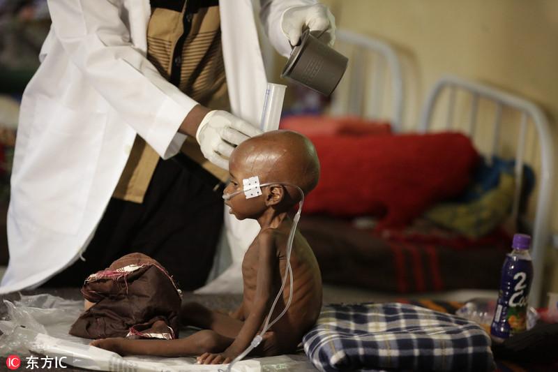 当地时间2016年8月29日,尼日利亚迈杜古里,一名营养不良的儿童在无国界医生的诊所里接受治疗。因有政府官员盗窃粮食援助,逃离博科圣地叛乱的儿童如今在尼日利亚最大城市的难民营里饿的奄奄一息。Sunday Alamba/东方IC